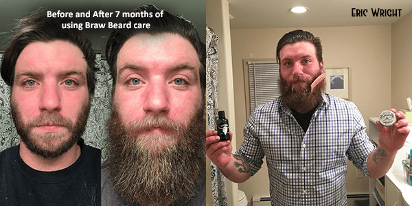 How To Avoid Uneven Beard Growth And Get Results